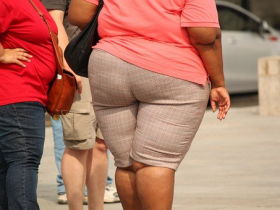体重超标关节累!养护关节需要氨糖的帮助