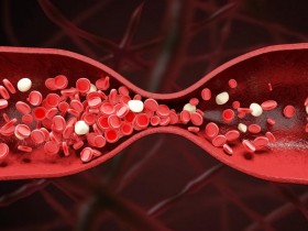 纳豆红曲的功效是什么?适合血脂偏高人群食用