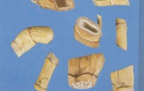 苇茎汤加味治疗肺痈医案