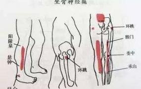 中医治疗坐骨神经痛的研究进展,坐骨神经痛的中医治疗方法