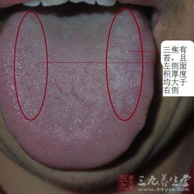 在舌诊的研究方面,从现代医学角度,基本阐明了正常舌象与异常舌象的形成机理,探讨了临床常见疾病的舌象变化及演变规律