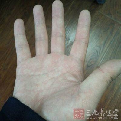 生姜可以减少手脚冰凉