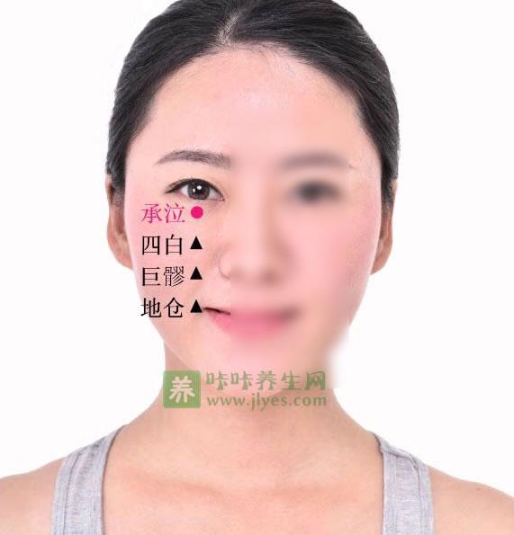 承泣穴位位置图