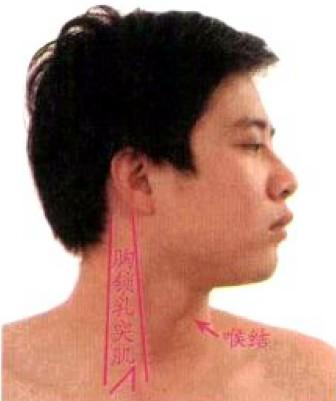 胸锁乳突肌